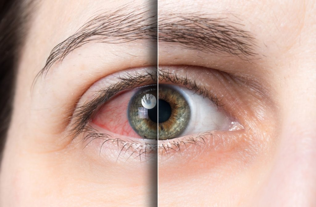 Photo of green eye before and after dry eye treatment with redness visible on left side