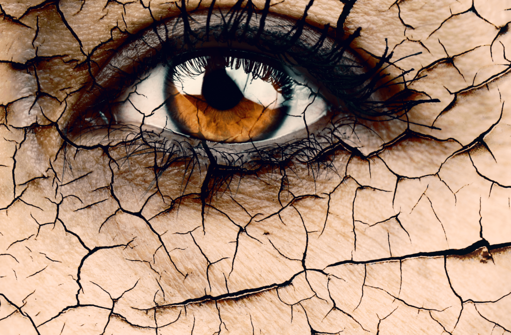 Rendering of eye with cracks surrounding it to represent dry eyes